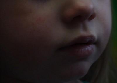 сопли и диатез у ребенка - DSC04088.JPG