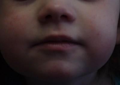 сопли и диатез у ребенка - DSC04090.JPG