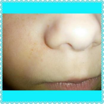 сопли и диатез у ребенка - PhotoGrid_1450820424990.jpg