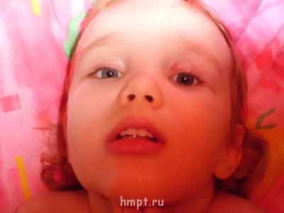 SOS Рецидив.Халязиум у 3х летнего ребенка - CIMG0262.JPG