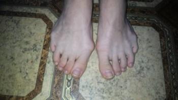 Косточки на ногах. - P_20190520_123838.jpg