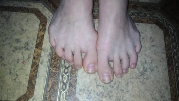 Косточки на ногах. - P_20190520_123817.jpg