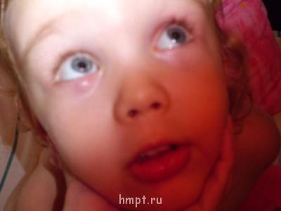 SOS Рецидив.Халязиум у 3х летнего ребенка - CIMG0261.JPG
