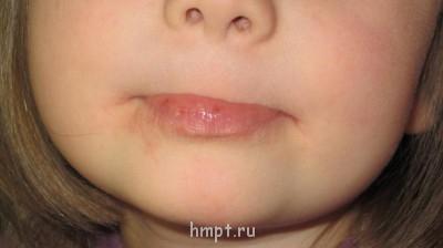 сопли и диатез у ребенка - IMG_0989.JPG