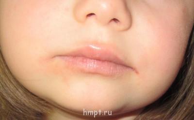 сопли и диатез у ребенка - IMG_0990.JPG